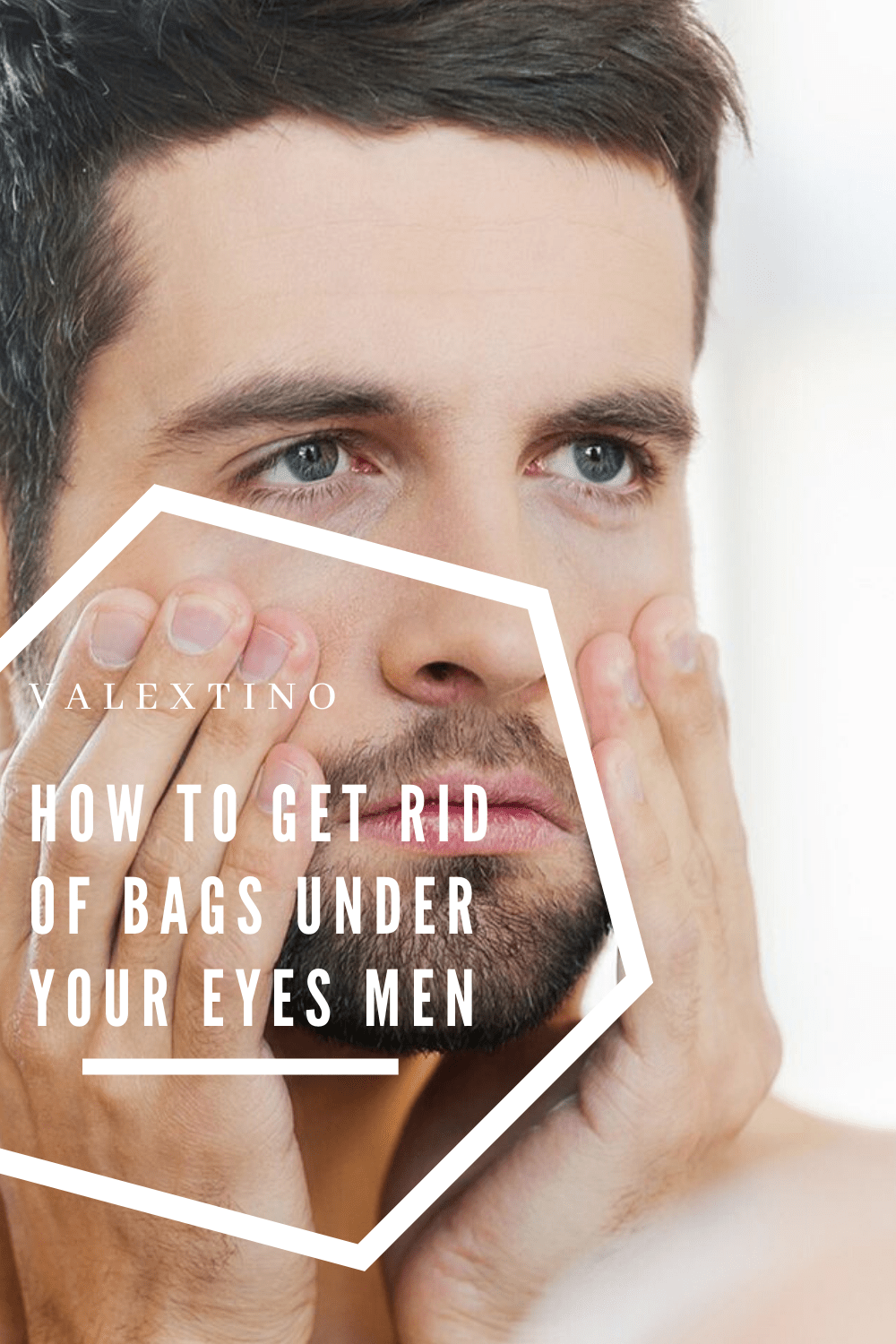 how to get rid of bags under your eyes men