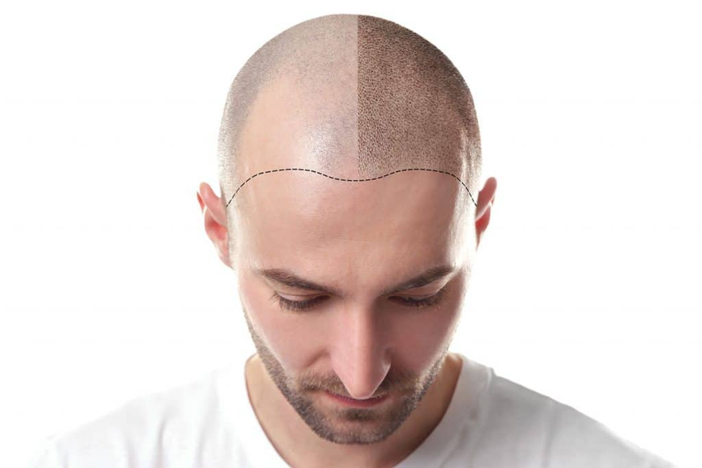 HOW IS A HAIR TRANSPLANT DONE?
