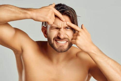 MALE ACNE: WHY THOSE UNAESTHETIC PIMPLES?